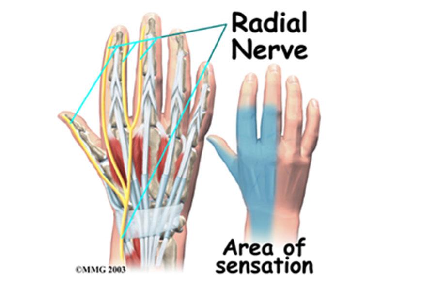 Compressie nervus radialis - Dr. Kuypers Kliniek Hoorn - Hand- en ...