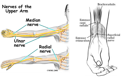 Upper limb tension test A  Physiopedia